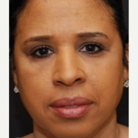 Woman treated with Restylane after 1686613