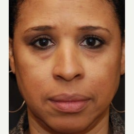 Woman treated with Restylane before 1686613