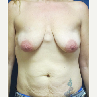 35-44 year old woman treated with Breast Reconstruction before 3140153