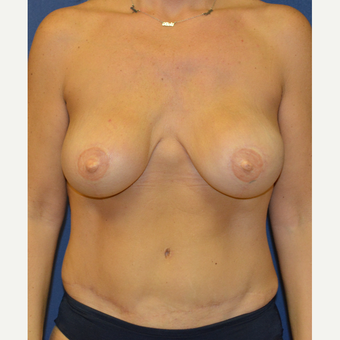 35-44 year old woman treated with Breast Reconstruction after 3140153