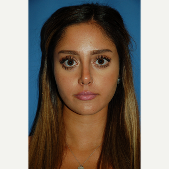 18-24 year old woman treated with Rhinoplasty after 3288864