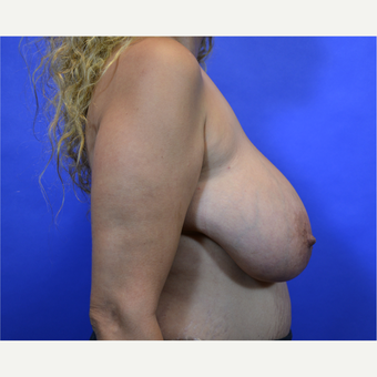 35-44 year old woman treated with Breast Reduction before 3579965