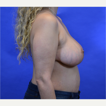 35-44 year old woman treated with Breast Reduction after 3579965
