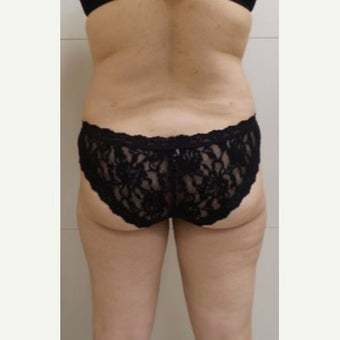 55-64 year old woman treated with Tumescent Liposuction after 2347753