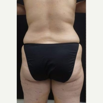 55-64 year old woman treated with Tumescent Liposuction before 2347753
