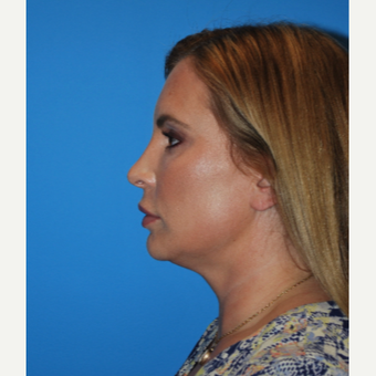 35-44 year old woman treated with Kybella before 2891455