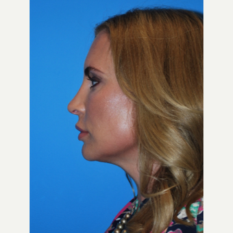 35-44 year old woman treated with Kybella after 2891455