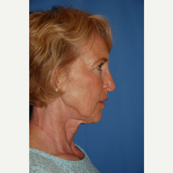 55-64 year old woman treated with Facelift before 3610813