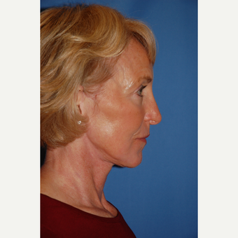 55-64 year old woman treated with Facelift after 3610813