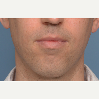35-44 year old man treated with Chin Surgery and Jaw Angle Implants before 3360999