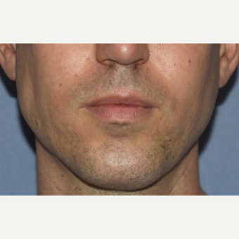 35-44 year old man treated with Chin Surgery and Jaw Angle Implants after 3360999