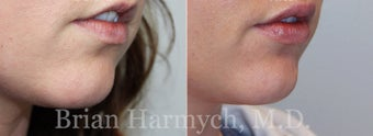 27 year-old female before and 1 week after lip injection with Restylane before 3441387