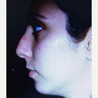 25-34 year old woman treated with Rhinoplasty before 3260921