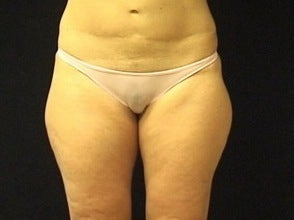 Thighplasty/Body Lift before 1092865