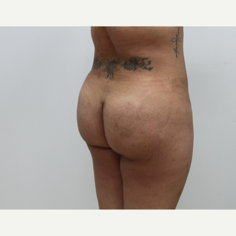 25-34 year old woman treated with Brazilian Butt Lift after 3582217