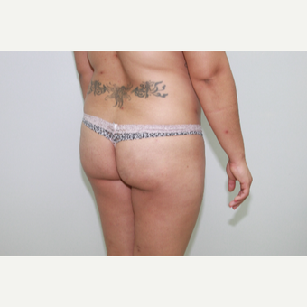 25-34 year old woman treated with Brazilian Butt Lift before 3582217