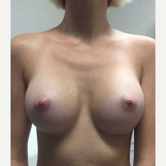 Breast Implants after 3807217