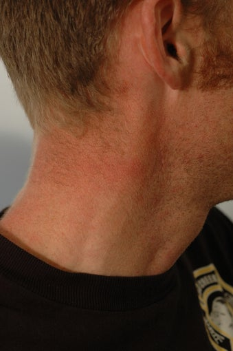 Neck Tattoo Removal -Laser Treatment after 203261