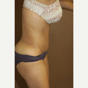 35-44 year old woman treated with Tummy Tuck after 3388685