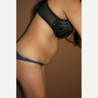35-44 year old woman treated with Tummy Tuck before 3388685
