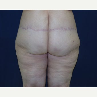 45-54 year old woman treated with Body Lift after 2600155