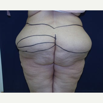 45-54 year old woman treated with Body Lift before 2600155