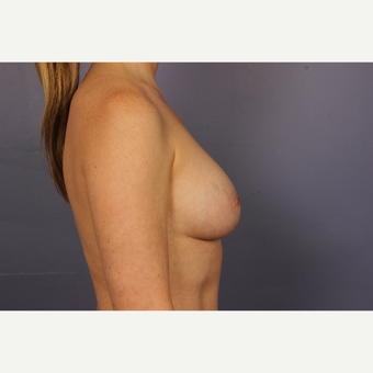 35-44 year old woman treated with Breast Lift with Implants after 3817117