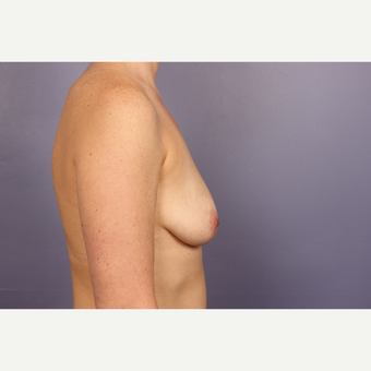 35-44 year old woman treated with Breast Lift with Implants before 3817117