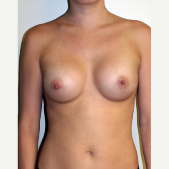 27 year old woman treated with Mentor Breast Implants after 2717653