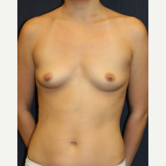 27 year old woman treated with Mentor Breast Implants before 2717653