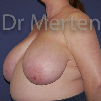 Breast Reduction before 3648546