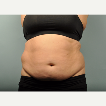35-44 year old woman treated with SculpSure before 2877983