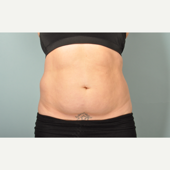 35-44 year old woman treated with SculpSure after 2877983