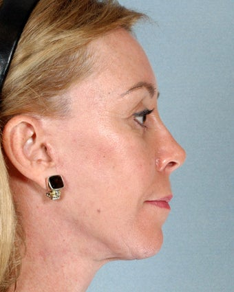 Facelift and Neck Lift - Female Age 49 after 1243666