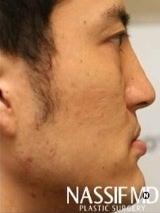Asian Revision Rhinoplasty  960201