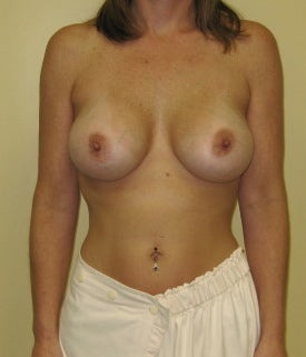 Breast haven implant new