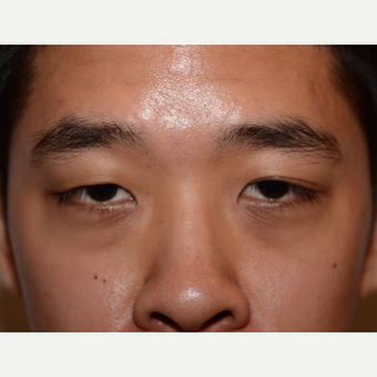25-34 year old man treated with Asian Eyelid Surgery before 3803212