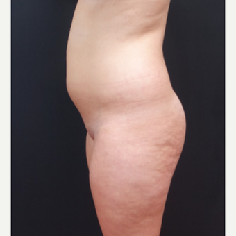 18-24 year old woman treated with Butt Lift before 3315520