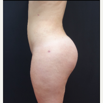 18-24 year old woman treated with Butt Lift after 3315520