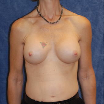 45-54 year old woman treated with Breast Augmentation after 3123846