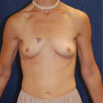 45-54 year old woman treated with Breast Augmentation before 3123846