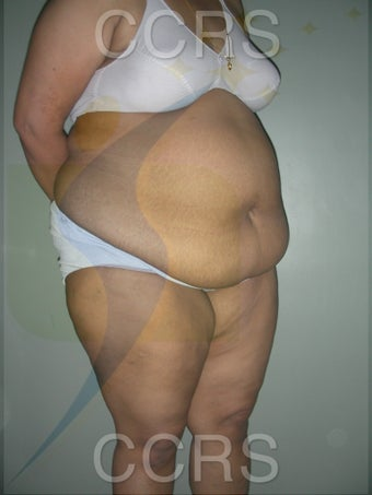 41 yr. old female. Tummy Tuck with VASER lipo for body contouring 1042666