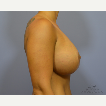 25-34 year old woman treated with Breast Lift with Implants after 3419891