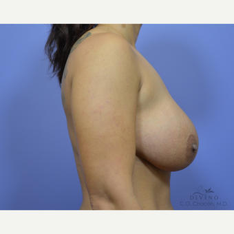 25-34 year old woman treated with Breast Lift with Implants before 3419891