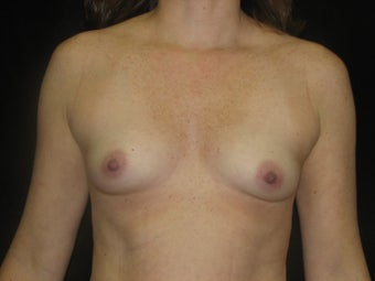 Natural Fill Breast Augmentation before 487258