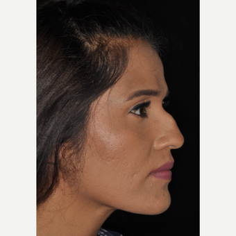 25-34 year old woman treated with Septoplasty 10 days post-op before 3452266