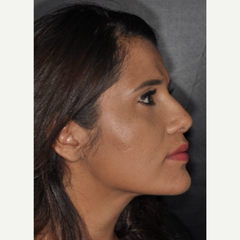 25-34 year old woman treated with Septoplasty 10 days post-op after 3452266