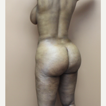 25-34 year old woman treated with Brazilian Butt Lift after 3338947