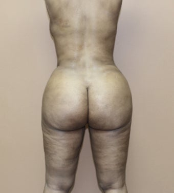 25-34 year old woman treated with Brazilian Butt Lift 3338947