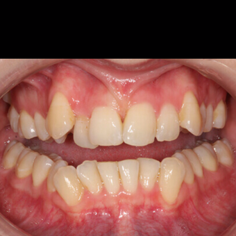 25-34 year old man treated with clear braces OrthoSnap